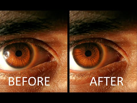 Remove Glare/flashspot From An Eye   Easy Photoshop Tutorial thumbnail