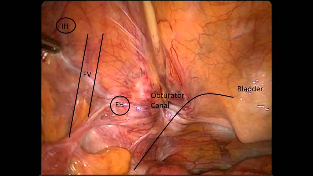 Emergency laparoscopic repair of an incarcerated obturator hernia ...