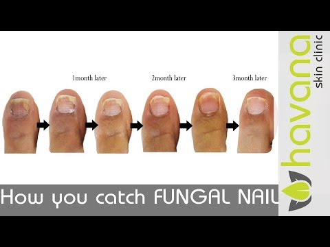 How fungal nail starts