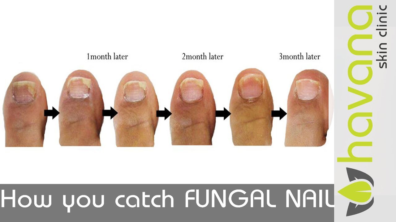 How fungal nail starts - YouTube