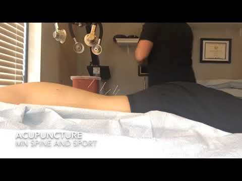 Electro Acupuncture at MN Spine and Sport