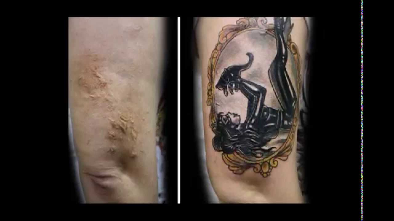 Tatuajes Para Ocultar Manchas Cicatrices Y Mastectomías Tattoos