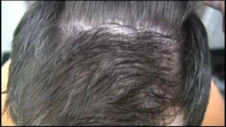 Dr Wong Hair Transplant Video - 4658 Grafts - 2 Sessions