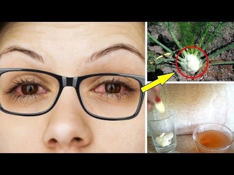 من السنة النبوية لعلاج ضعف النظر لإستعادة قوة البصر من جديد دون نظارات