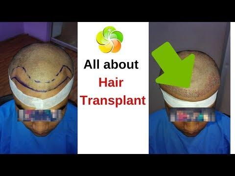 hair-transplant-before-vs-after-|-kolkata-|