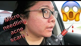 Microneedling Acne Scars Experience and Progress