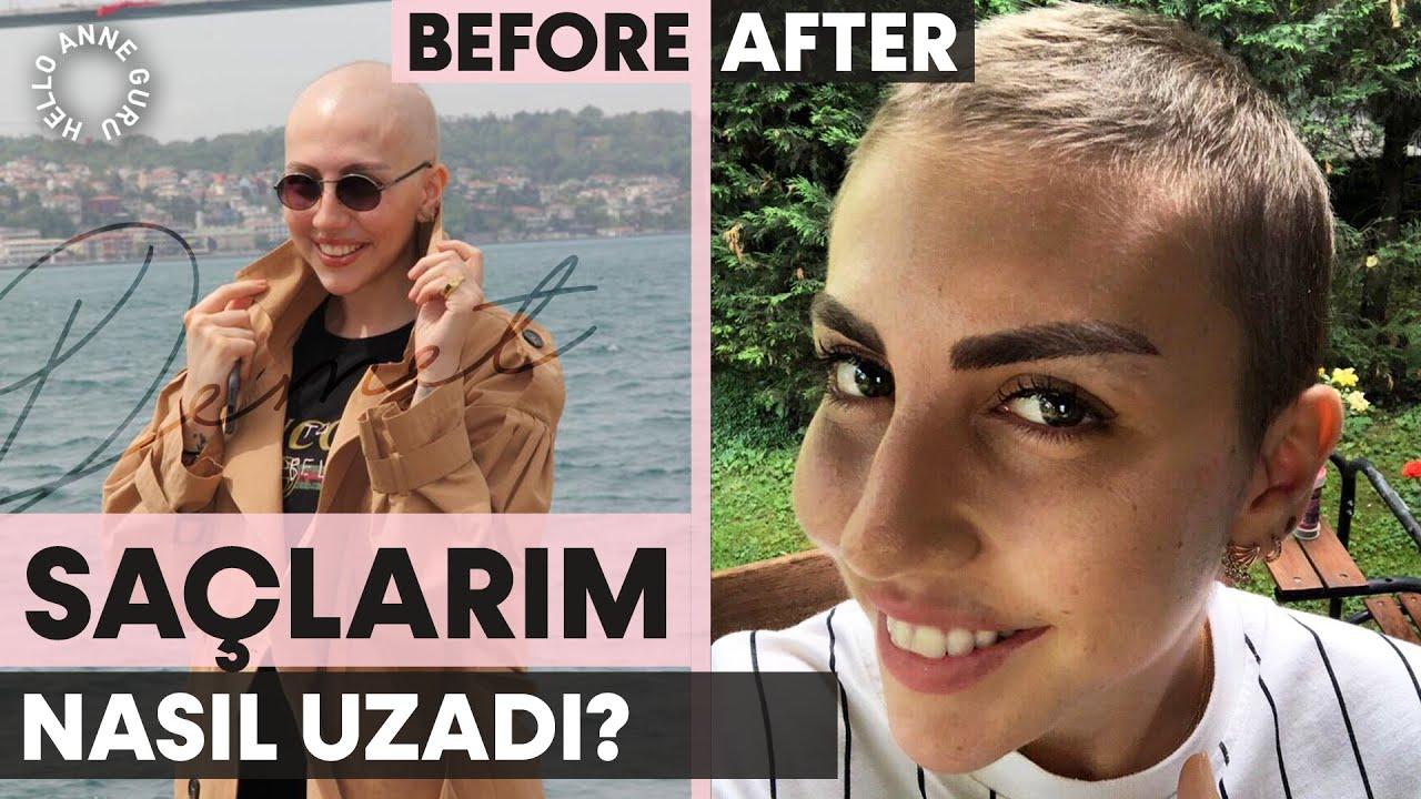 Saçlarım Hemen Nasıl Uzadı? Kemoterapi Sonrası Hızlı Saç Uzatma, Kaş, Kirpik