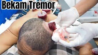 penyebab dan mencegah mulut kering Mulut kering atau xerostomia merupakan masalah mulut yang cukup m.