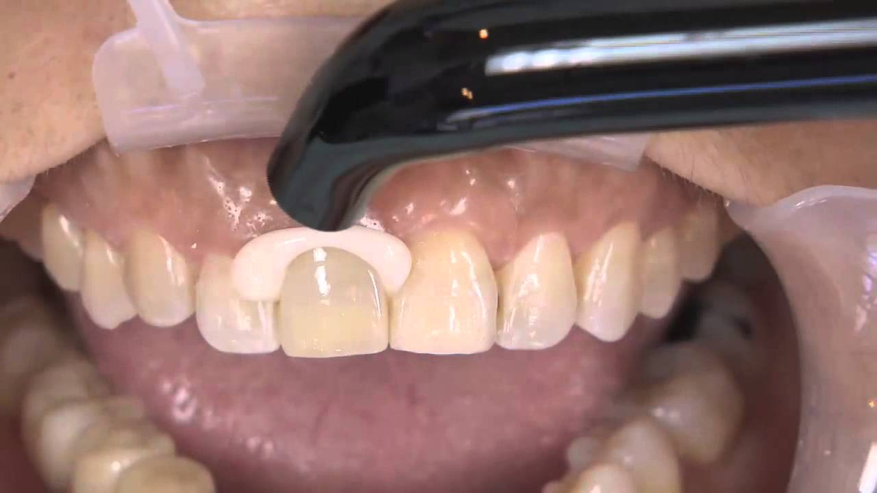 How to Complete an Anterior Dental Restoration with Kerrs