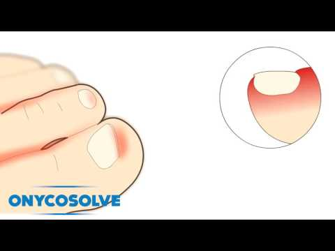 OnycoSolve – The Master Of Feet Fungus Destruction