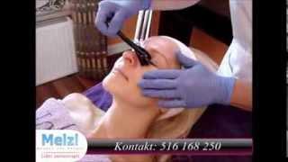 Meizi.pl - Derma Roller - Mezoterapia Igłowa - Mezoterapia Mikroigłowa