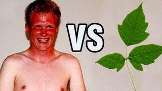 Sunburn vs Poison Ivy
