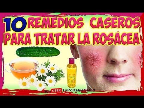 Rosácea 10 Remedios Caseros Y Naturales Para La Rosacea Listen On Repeat Youtube Loop Replay And Repeater