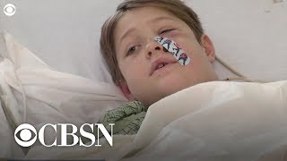 Boy impaled in the face with skewer is miraculously saved