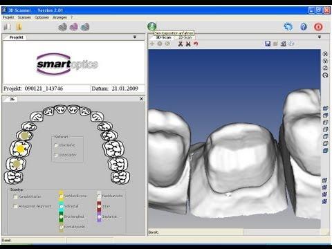 CAD CAM Dental Scanner...