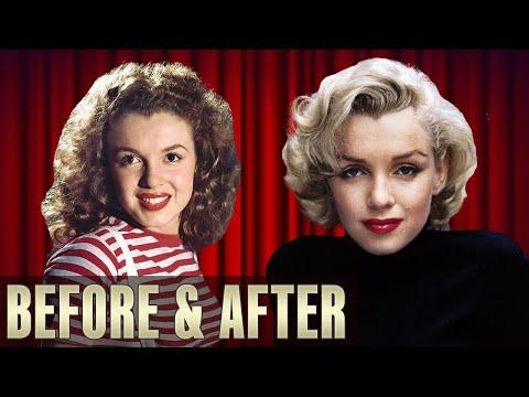 Marilyn Monroe: Plastic Surgery
