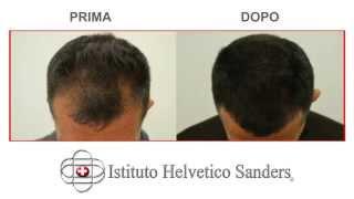 I risultati del'autotrapianto di capelli con tecnica fue: una galleria immagini in cui è evidente il rinfoltimento della zona del frontale. la prima foto...