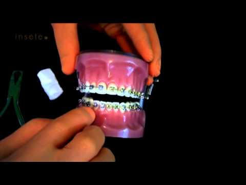 Vídeo Curso de ortodontia