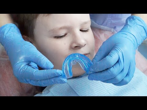Исправление прикуса ортодонтическим