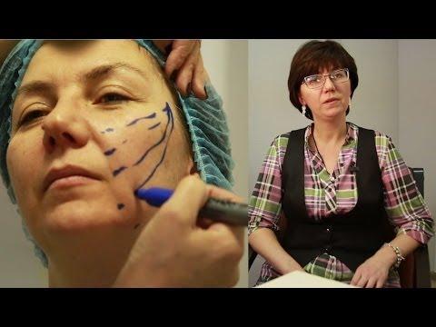 Подтяжка лица нитями (малоинвазивные методики омоложения лица)