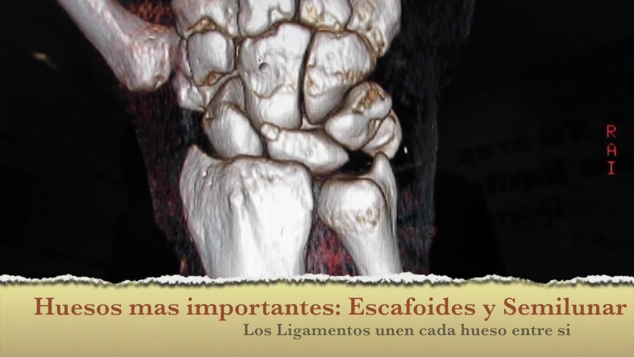 Como es la Anatomia ósea de la muñeca (carpo). Wrist anatomy (CT ...