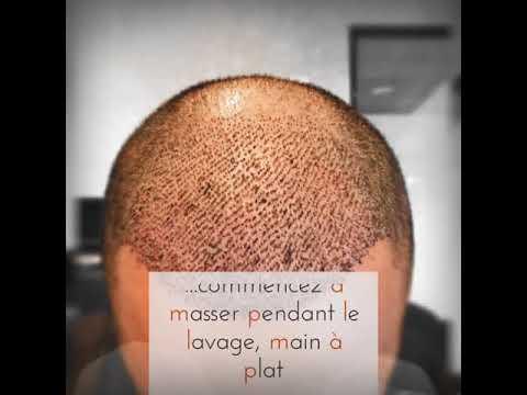Mybodymoon - Greffe de cheveux - Conseils post opératoire *****