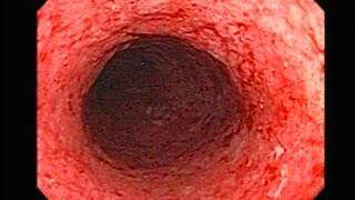 Ulcerosa histologia colitis