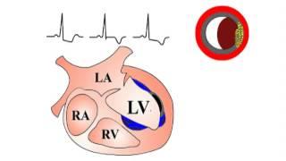ЭКГ - NSTEMI/Unstable angina