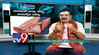 Foot swelling & Pain - Ayurvedic treatment - Life Line - TV9