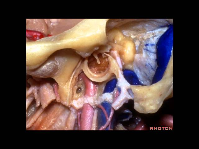 Far Lateral Approach and Jugular Foramen - Part 2 of 2