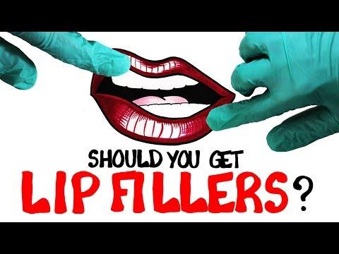 Should You Get Lip Fillers?