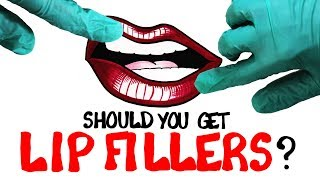 Should You Get Lip Fillers?