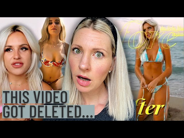 Dietitian Reviews Blair Walnuts TRIGGERING Weight Loss Video (So Controversial it Got DELETED!)