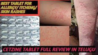 BEST TABLET FOR ALLERGY AND SKIN RASHES AND ITCHING/CETZINE TABLET USES DOSE  FULL REVIEW IN TELUGU