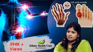 யூரிக் அமில அளவு குறைப்பது எப்படி | High Uric Acid | Men's Gout Arthritis | Dr. Yoga Vidhya