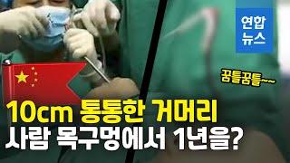 중국 5살 아이 목구멍서 거머리 꿈틀꿈틀 / 연합뉴스 …