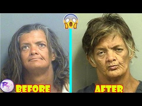 Before And After Drug Use Pictures