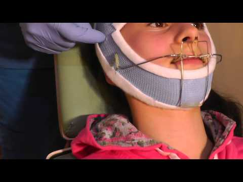 Second Stage-p3 of MewVector Orthodontic Orthotropics Headgear (Head Brace) Preparation- Dr Mike Mew