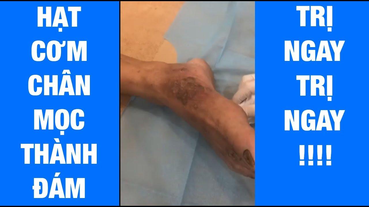 Cận cảnh quá trình chữa mụn mắt cá chân, mụn cóc, mụn cơm siêu khủng bằng CN đốt Laser tại Maia