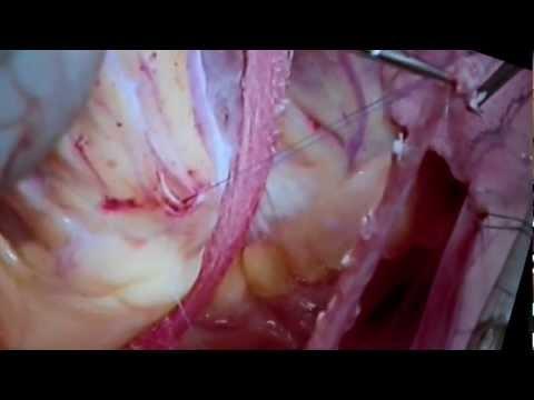 (HD)Bypass Herzoperation(Detail gezoomt !!!)