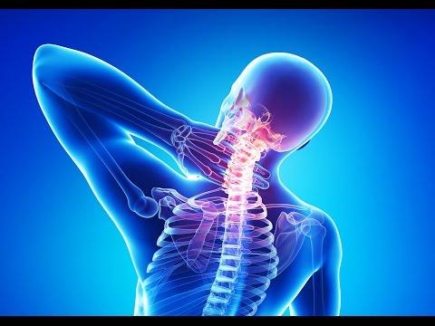 Остеохондроз шейного отдела - симптомы, способы лечения