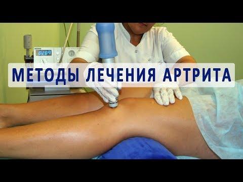 Методы лечения артрита суставов - Продолжительность: 10:54