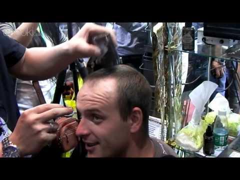 Пересадка волос цены