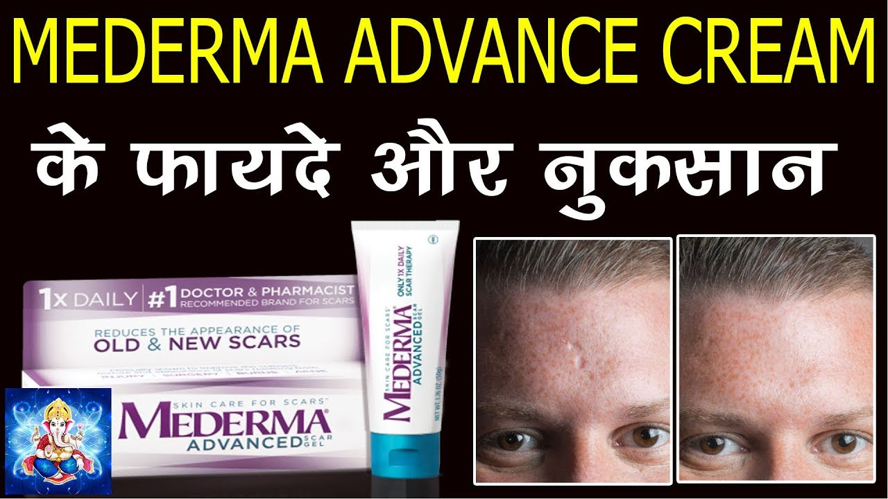 Mederma gel review || How to remove surgery marks || 2019 by