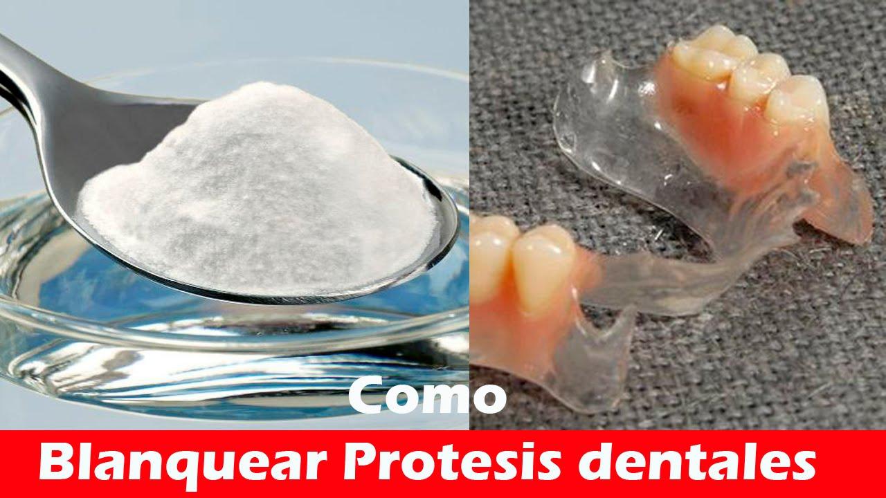 Recetas caseras para blanquear los dientes postizos
