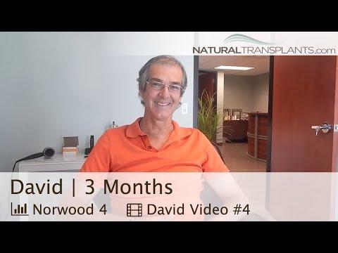 Hair Transplant 3 Month Results, FUT [Strip Method] at Natural Transplants Miami (David)