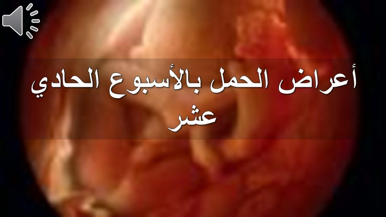 f82348b69 أعراض الحمل بالأسبوع الحادي عشر - YouTube