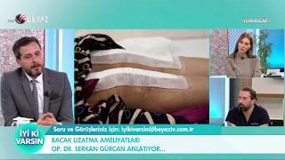 Bacak uzatma ameliyatı sonrası hastalar günlük hayatına ne zaman başlayabilir?