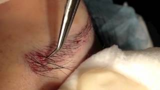Eyebrow Transplant Informational Video