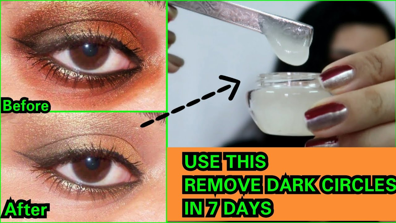 Under Eye Gel to Remove Dark Circles in 7 days | How to ...